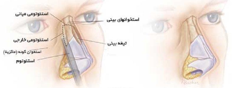 استئوتومی بینی چیست ؟