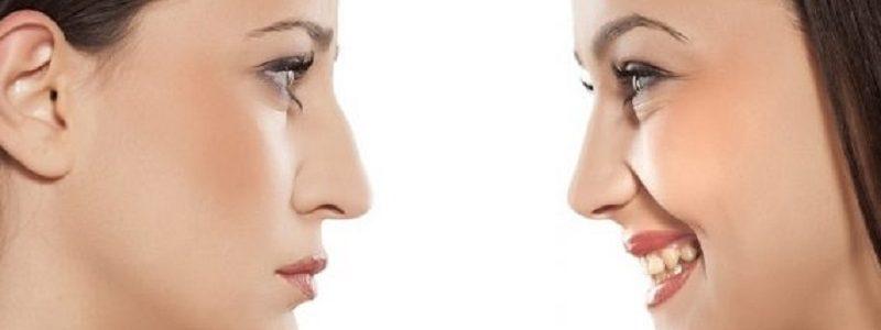 اصلاح قوز بینی در جراحی