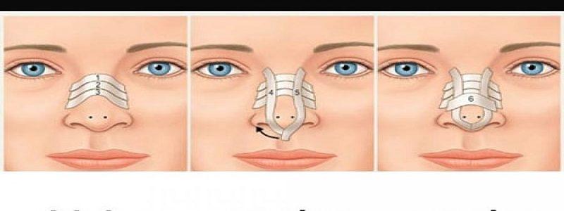 اقدامات بعد از جراحی زیبایی بینی