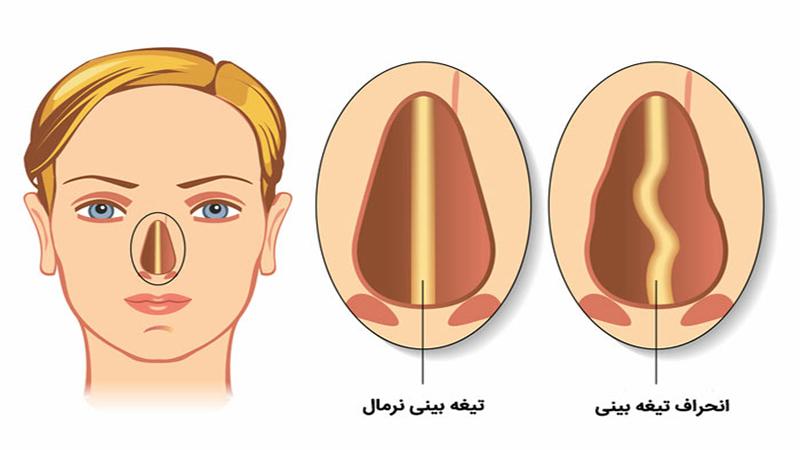 جراح بینی اصفهان | انحراف بینی چیست