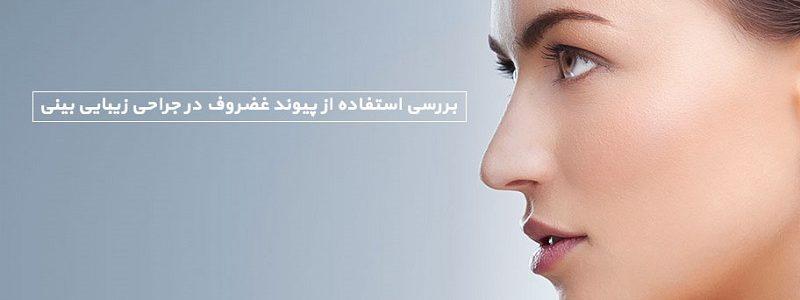 بررسی استفاده از پیوند- غضروف در جراحی زیبایی بینی