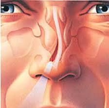 انحراف شدید بینی و تاثیر آن روی فشار شریان ریه و قلب
