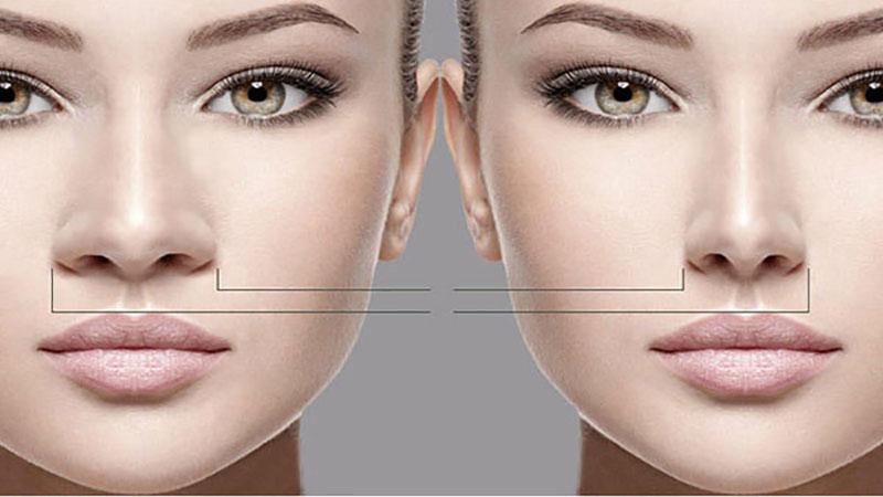 جراح بینی اصفهان | تفاوت بینی گوشتی و استخوانی