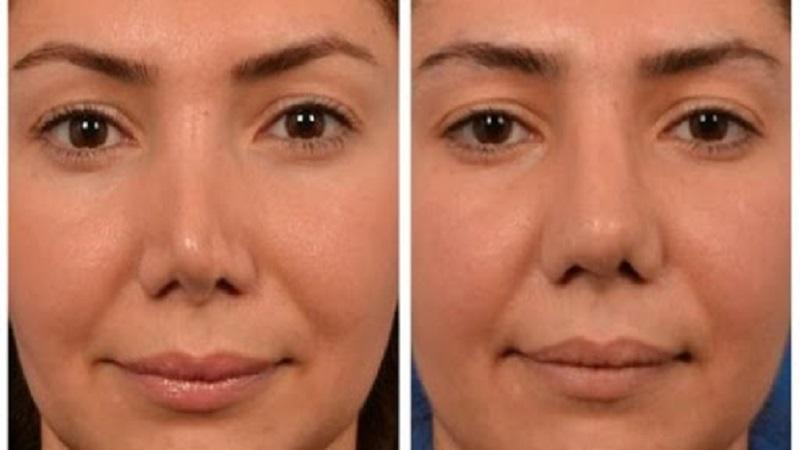 جراح بینی اصفهان | تفاوت های عمل ترمیم با رینوپلاستی اولیه