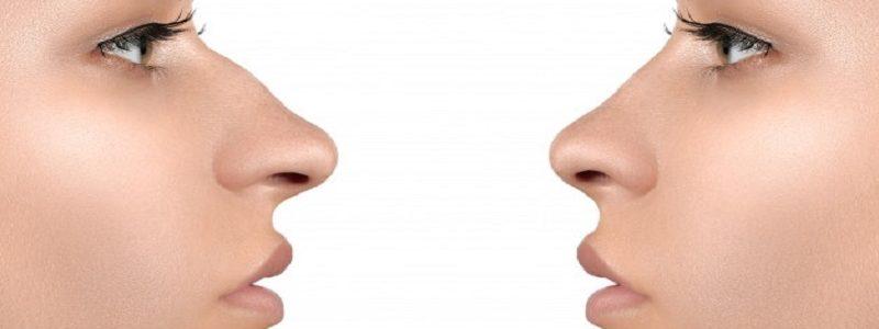 تفاوت عمل ترمیم با رینوپلاستی اولیه