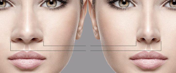 تورم بعد از عمل بینی چقدر طول می کشد؟