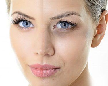 بهترین روش های درمان تیرگی و سیاهی پوست دور دهان کلینیک