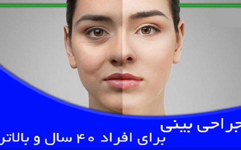 جراحی بینی برای افراد 40 سال و بالاتر