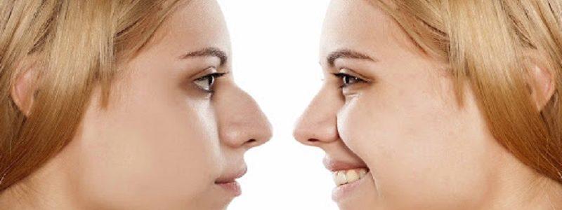 آیا بینی که در اثر جراحی قبلی آسیب دیده و بدشکل شده قابل اصلاح است؟