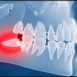 جراحی داخل دهانی نسج سخت و نسج نرم