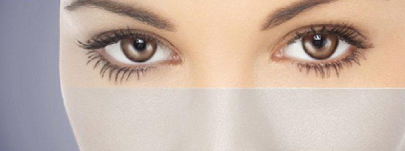 ۵ نکته پس از جراحی پلک و کشیدن ابرو