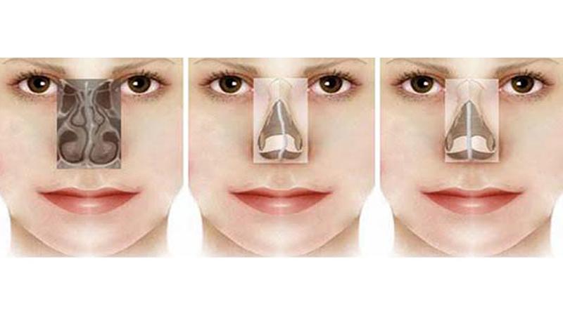 جراح بینی اصفهان | درمان انحراف بینی