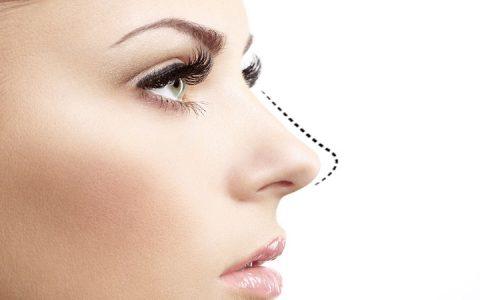 راهکارهای ترمیم جراحی زیبایی بینی ناموفق