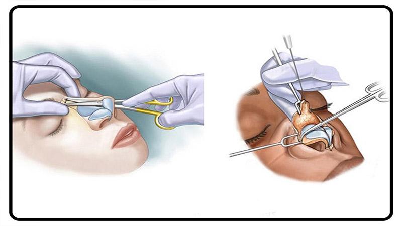 جراح بینی اصفهان | روش های عمل جراحی ترمیم بینی