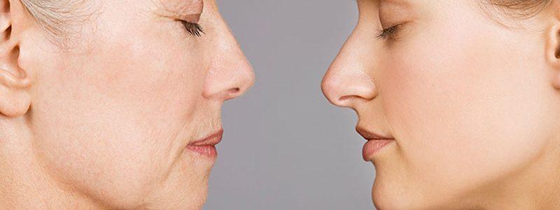 سن مناسب برای عمل بینی گوشتی