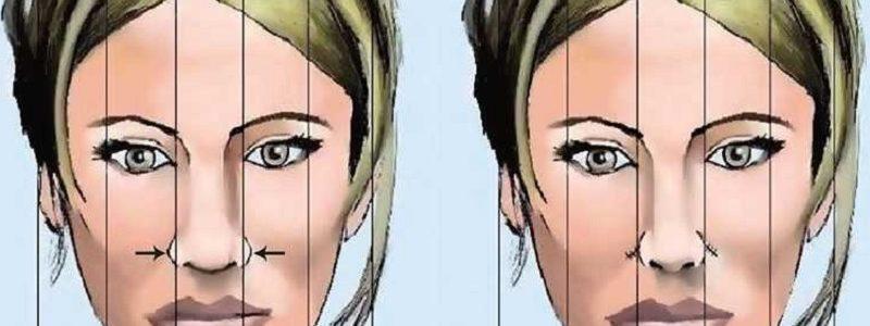 جراحی بینی پهن چگونه است؟
