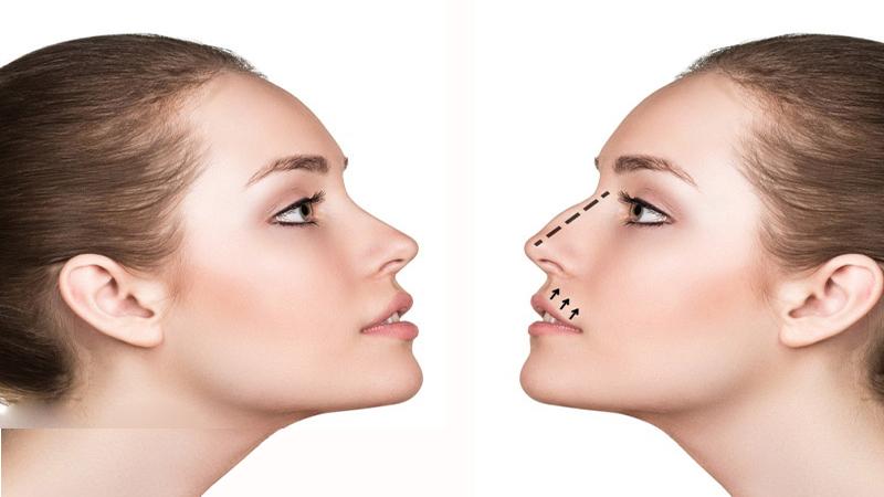 جراح بینی اصفهان | عمل بینی استخوانی