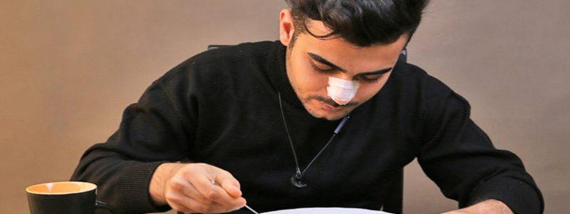 غذا خوردن بعداز جراحی بینی