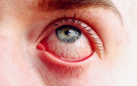قرمزی چشم بعد عمل بینی و رفع آن