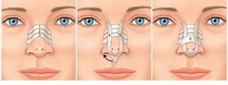 نحوه چسب زدن بینی بعد از عمل جراحی