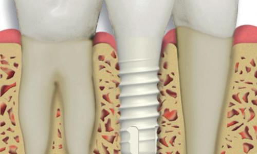 نحوه کاشت دندان
