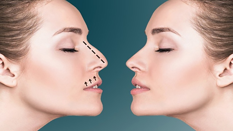 جراح بینی اصفهان | کم خونی و جراحی بینی