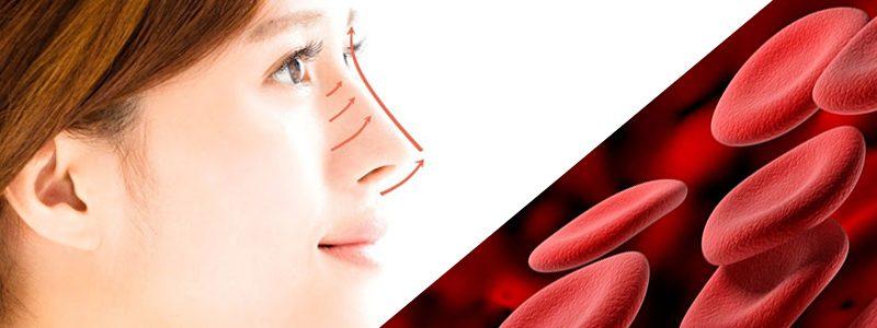 کم خونی و جراحی بینی