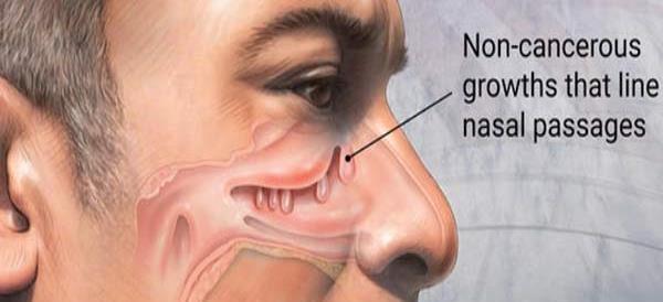 آیا عمل جراحی پولیپ می تواند خطرناک باشد؟