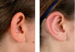 عمل اتوپلاستی (جراحی گوش ) چیست؟ (بخش دوم)