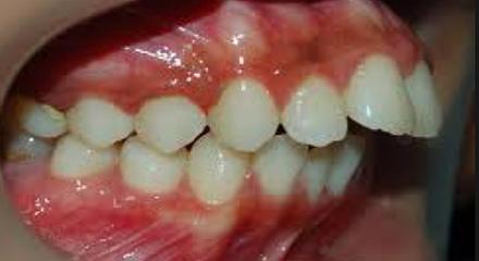 ناهنجاری های فک و دندان