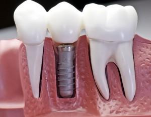 پرسش های متداول پیرامون ایمپلنت دندان