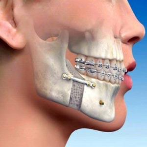 تاثیر جراحی فک بر چهره