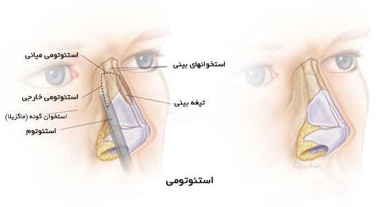 استئوتومی درعمل جراحی بینی چیست؟