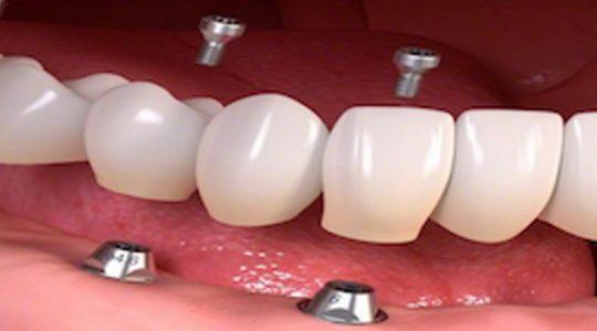 کاشت دندان به روش پانچینگ