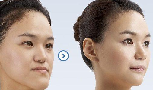 سن مناسب جراحی فک و صورت